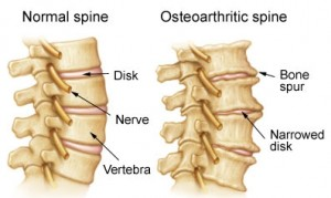 Bone Spurs and Osteophytes | Axis Specialty Hospital Croatia