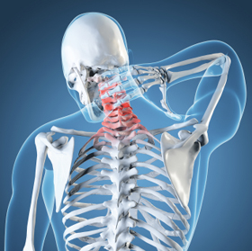 Neck Pain – Cervical Pain