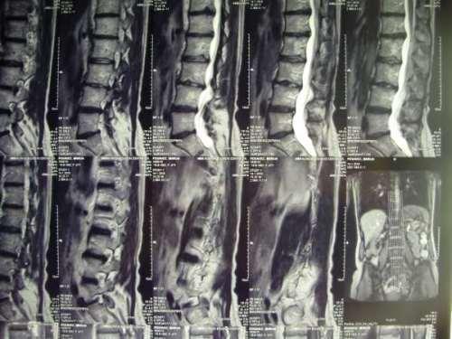 Spine Patient Success Story Transforaminal Lumbar
