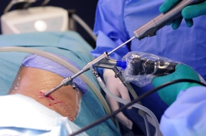 Selective Endoscopic Discectomy (SED) Surgical Procedure Video