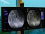 PLDD - Laser Spine Surgery